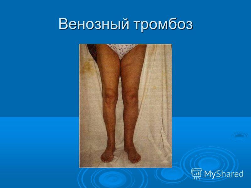 венозный тромбоз симптомы