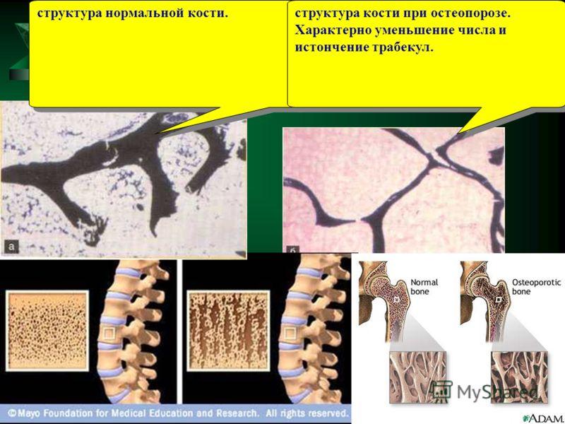 структура нормальной кости. структура кости при остеопорозе. Характерно уменьшение числа и истончение трабекул.