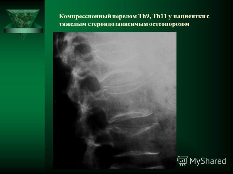 Компрессионный перелом Th9, Th11 у пациентки с тяжелым стероидозависимым остеопорозом