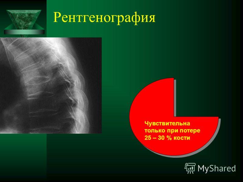 Рентгенография Чувствительна только при потере 25 – 30 % кости