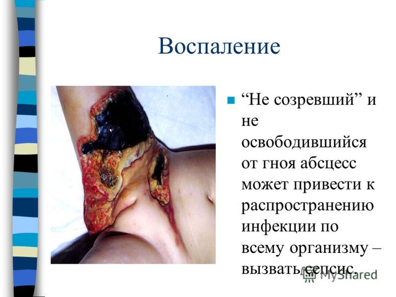 Воспаление n Не созревший и не освободившийся от гноя абсцесс может привести к распространению инфекции по всему организму – вызвать сепсис.