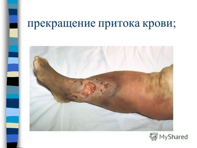 прекращение притока крови;