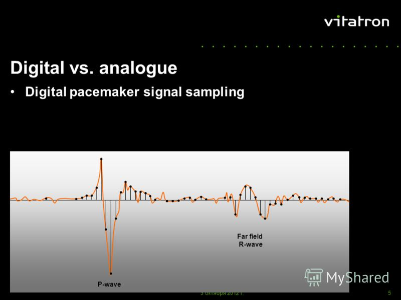 ................... 1 августа 2012 г.5 amplitude Digital vs. analogue Digital pacemaker signal sampling P-wave Far field R-wave