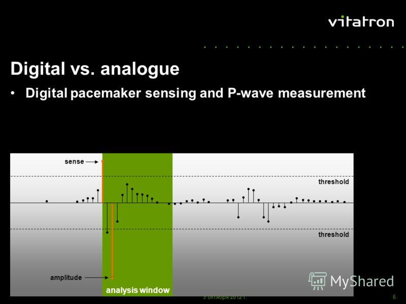 ................... 1 августа 2012 г.6 amplitude Digital vs. analogue Digital pacemaker sensing and P-wave measurement sense analysis window threshold amplitude