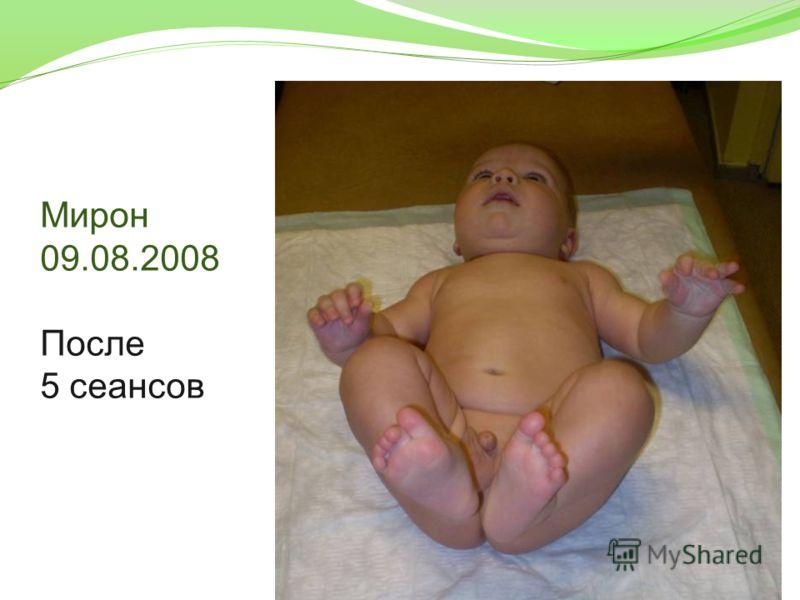 Мирон 09.08.2008 После 5 сеансов