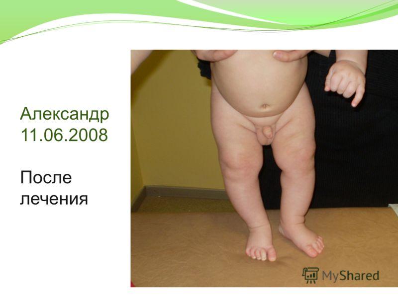 Александр 11.06.2008 После лечения