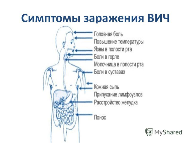 Симптомы заражения ВИЧ