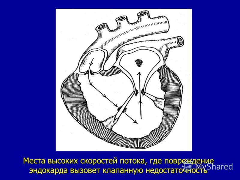 Места высоких скоростей потока, где повреждение эндокарда вызовет клапанную недостаточность