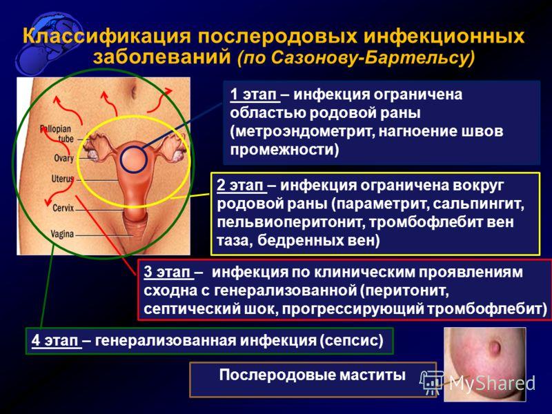 Диагностика послеродовых заболеваний