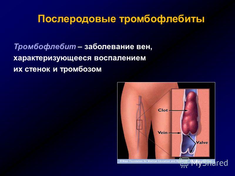 Послеродовые тромбофлебиты Тромбофлебит – заболевание вен, характеризующееся воспалением их стенок и тромбозом