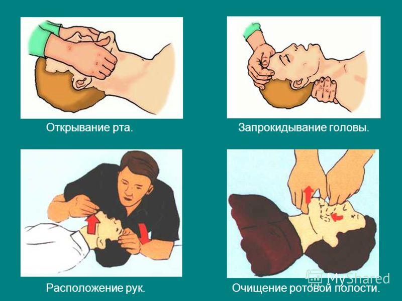 Открывание рта. Запрокидывание головы. Расположение рук. Очищение ротовой полости.