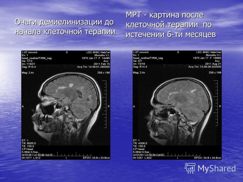 Очаги демиелинизации до начала клеточной терапии МРТ - картина после клеточной терапии по истечении 6-ти месяцев