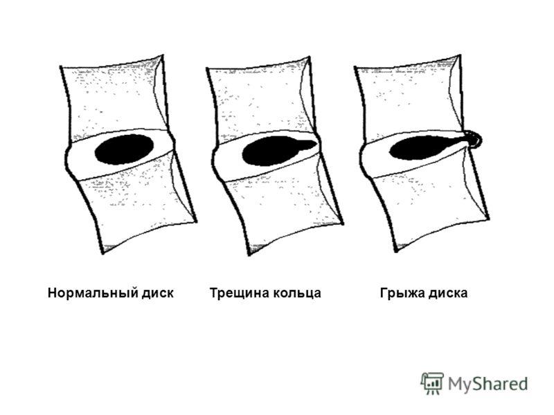 Нормальный дискТрещина кольцаГрыжа диска