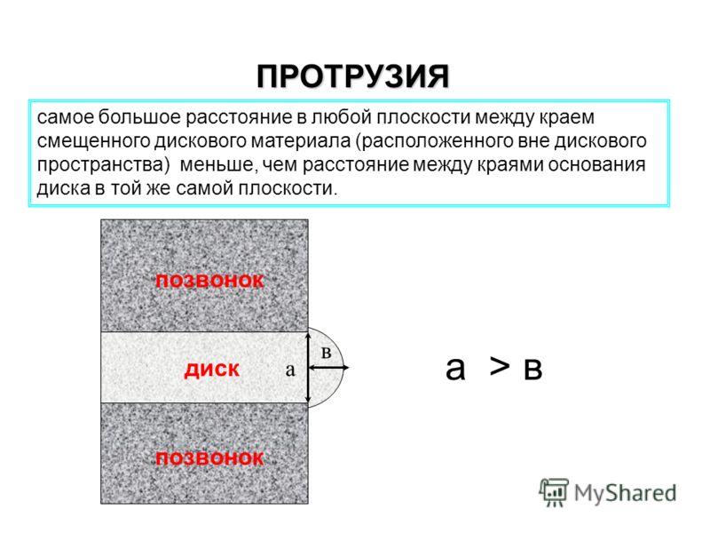 ПРОТРУЗИЯ самое большое расстояние в любой плоскости между краем смещенного дискового материала (расположенного вне дискового пространства) меньше, чем расстояние между краями основания диска в той же самой плоскости. а в а > в позвонок диск
