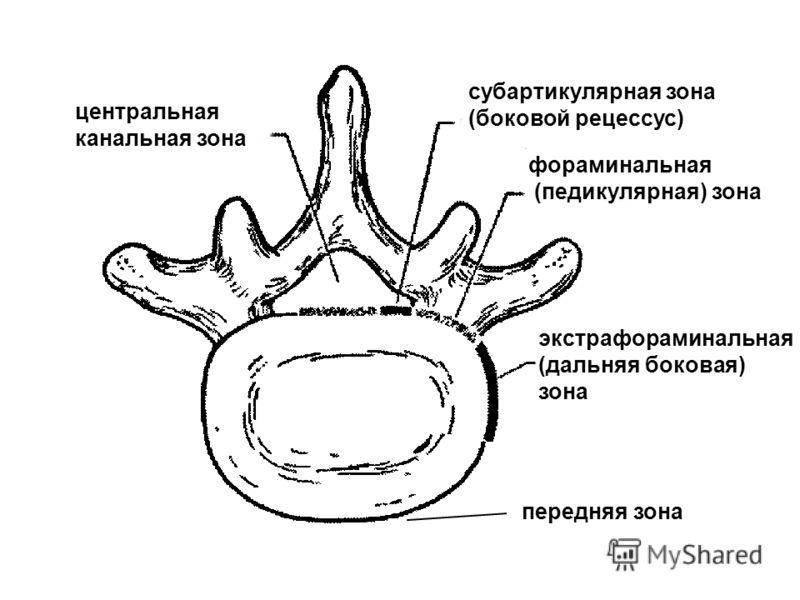 центральная канальная зона субартикулярная зона (боковой рецессус) фораминальная (педикулярная) зона экстрафораминальная (дальняя боковая) зона передняя зона