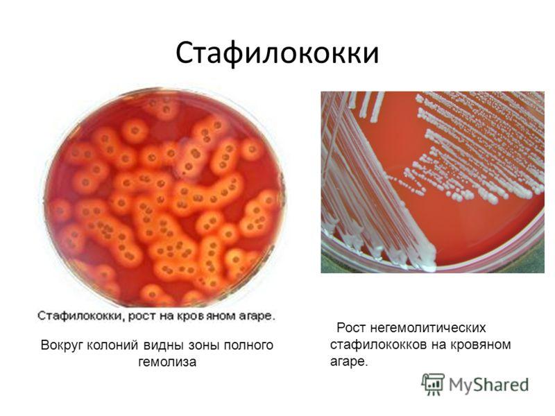 Стафилококки Вокруг колоний видны зоны полного гемолиза Рост негемолитических стафилококков на кровяном агаре.
