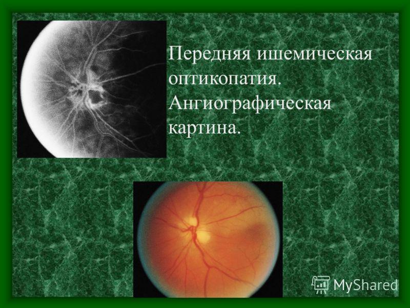 Передняя ишемическая оптикопатия. Динамика развития.