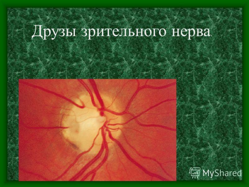 Передняя ишемическая оптикопатия. Ангиографическая картина.