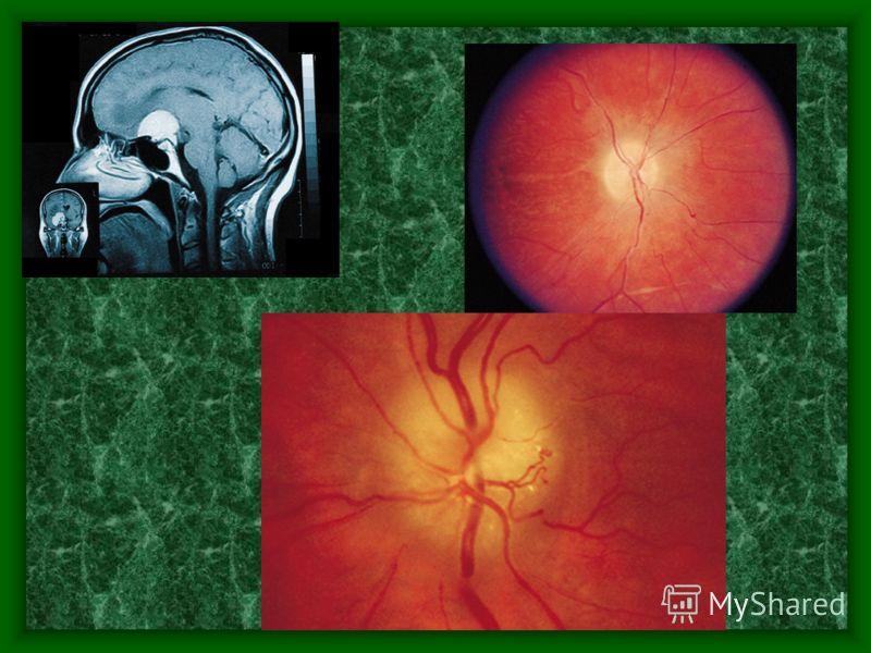Синдром Форстнера- Кеннеди.Картина атрофии з.н. На правом глазу и застойного соска на левом.На рентгенограмме локализация опухоли справа.