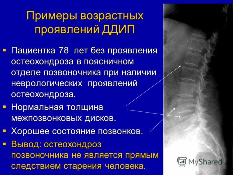 Примеры возрастных проявлений ДДИП Пациентка 78 лет без проявления остеохондроза в поясничном отделе позвоночника при наличии неврологических проявлений остеохондроза. Пациентка 78 лет без проявления остеохондроза в поясничном отделе позвоночника при