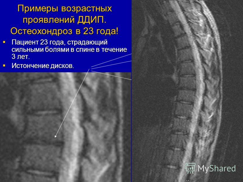 Примеры возрастных проявлений ДДИП. Остеохондроз в 23 года! Пациент 23 года, страдающий сильными болями в спине в течение 3 лет. Пациент 23 года, страдающий сильными болями в спине в течение 3 лет. Истончение дисков. Истончение дисков.
