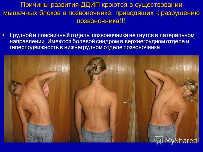 Причины развития ДДИП кроются в существовании мышечных блоков в позвоночнике, приводящих к разрушению позвоночника!!! Грудной и поясничный отделы позвоночника не гнутся в латеральном направлении. Имеются болевой синдром в верхнегрудном отделе и гипер