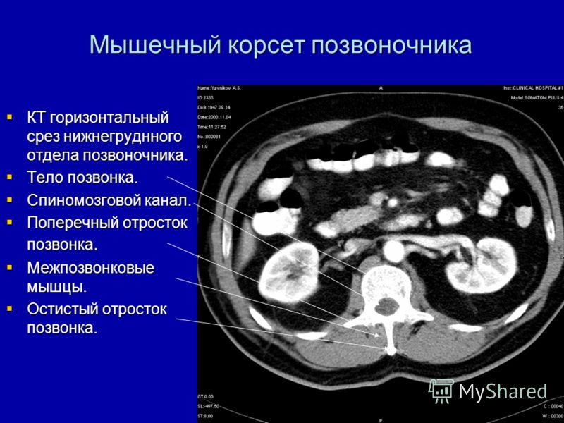 Мышечный корсет позвоночника КТ горизонтальный срез нижнегруднного отдела позвоночника. КТ горизонтальный срез нижнегруднного отдела позвоночника. Тело позвонка. Тело позвонка. Спиномозговой канал. Спиномозговой канал. Поперечный отросток позвонка. П