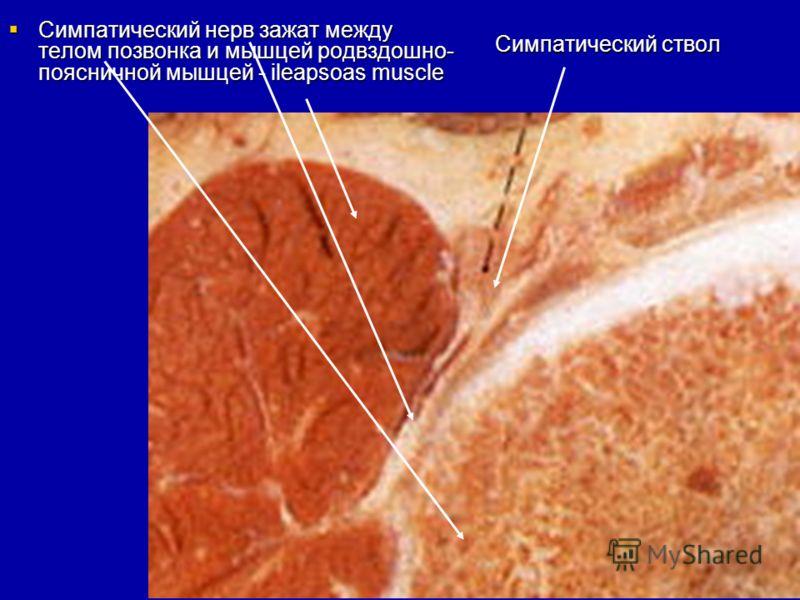 Метастазы в шейном отделе позвоночника