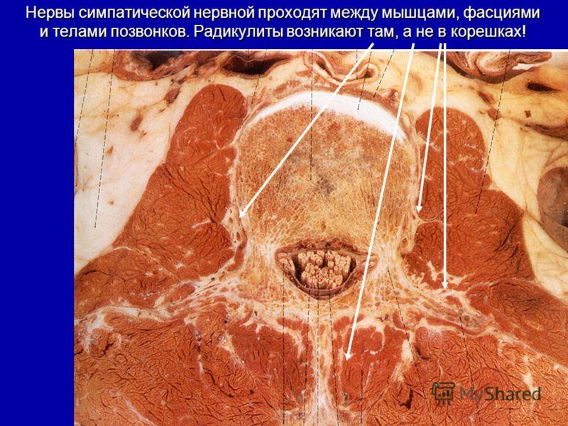 Нервы симпатической нервной проходят между мышцами, фасциями и телами позвонков. Радикулиты возникают там, а не в корешках!
