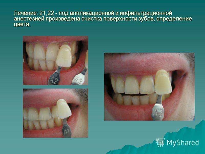 Лечение: 21,22 - под аппликационной и инфильтрационной анестезией произведена очистка поверхности зубов, определение цвета.