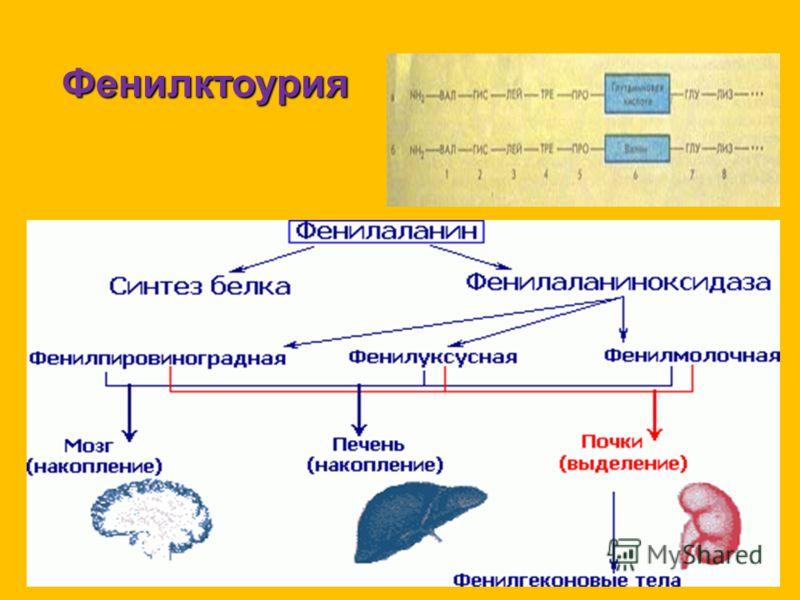 Фенилктоурия