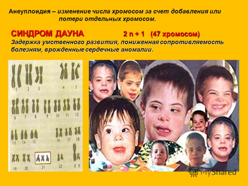 Анеуплоидия – изменение числа хромосом за счет добавления или потери отдельных хромосом. СИНДРОМ ДАУНА 2 n + 1 (47 хромосом) Задержка умственного развития, пониженная сопротивляемость болезням, врожденные сердечные аномалии.