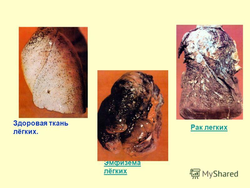 Здоровая ткань лёгких. Эмфизема лёгких Рак легких