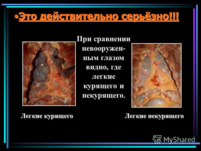 Это действительно серьёзно!!!Это действительно серьёзно!!!. При сравнении невооружен- ным глазом видно, где легкие курящего и некурящего. Легкие курящего Легкие курящего Легкие некурящего