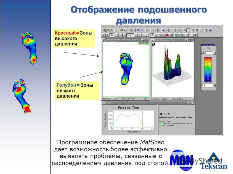 Отображение подошвенного давления Программное обеспечение MatScan дает возможность более эффективно выявлять проблемы, связанные с распределением давления под стопой. Красный = Зоны высокого давления Голубой = Зоны низкого давления