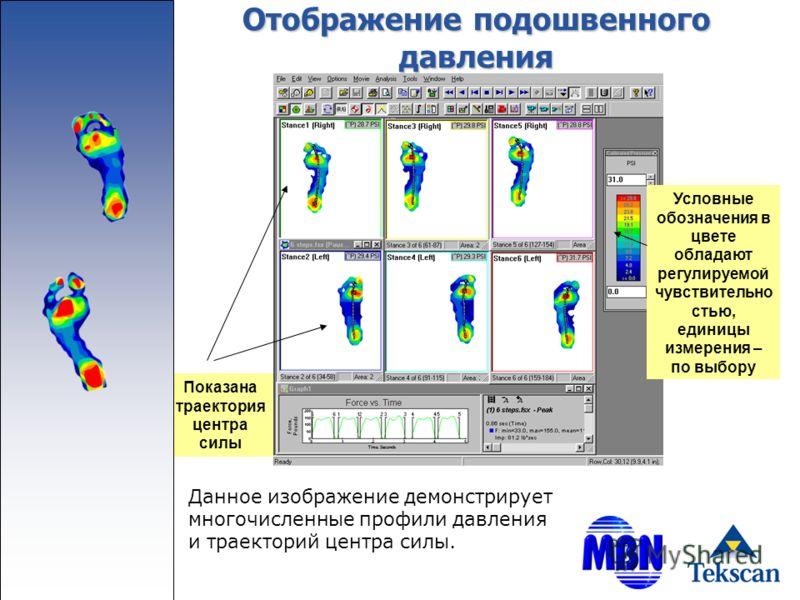 Отображение подошвенного давления Условные обозначения в цвете обладают регулируемой чувствительно стью, единицы измерения – по выбору Показана траектория центра силы Данное изображение демонстрирует многочисленные профили давления и траекторий центр