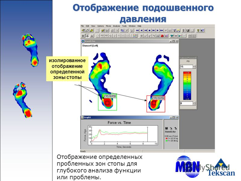 Отображение подошвенного давления Отображение определенных проблемных зон стопы для глубокого анализа функции или проблемы. изолированное отображение определенной зоны стопы