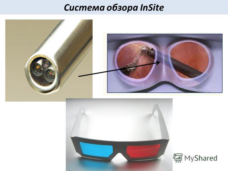 Система обзора InSite