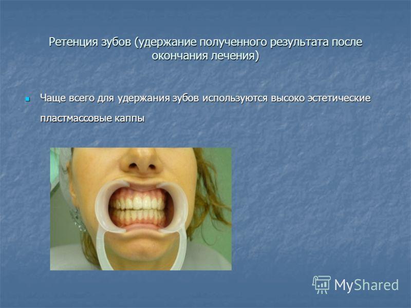 Ретенция зубов (удержание полученного результата после окончания лечения) Чаще всего для удержания зубов используются высоко эстетические пластмассовые каппы Чаще всего для удержания зубов используются высоко эстетические пластмассовые каппы