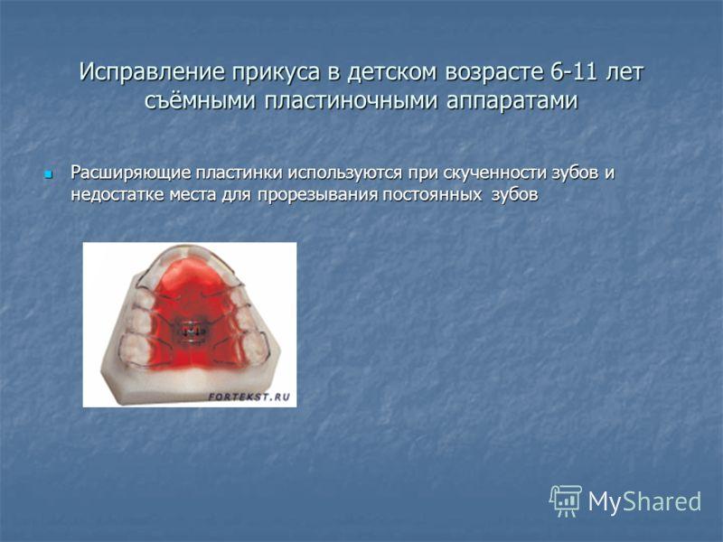 Исправление прикуса в детском возрасте 6-11 лет съёмными пластиночными аппаратами Расширяющие пластинки используются при скученности зубов и недостатке места для прорезывания постоянных зубов Расширяющие пластинки используются при скученности зубов и