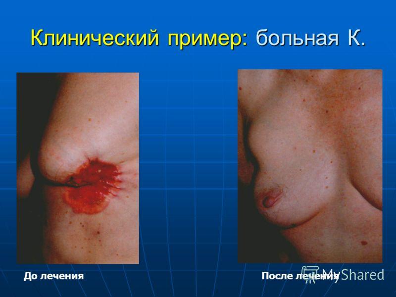 Клинический пример: больная К. До леченияПосле лечения