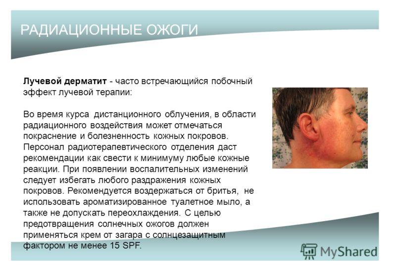 РАДИАЦИОННЫЕ ОЖОГИ Лучевой дерматит - часто встречающийся побочный эффект лучевой терапии: Во время курса дистанционного облучения, в области радиационного воздействия может отмечаться покраснение и болезненность кожных покровов. Персонал радиотерапе