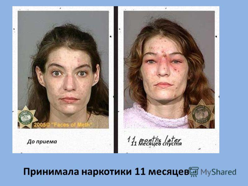 Принимала наркотики 11 месяцев До приема 11 месяцев спустя