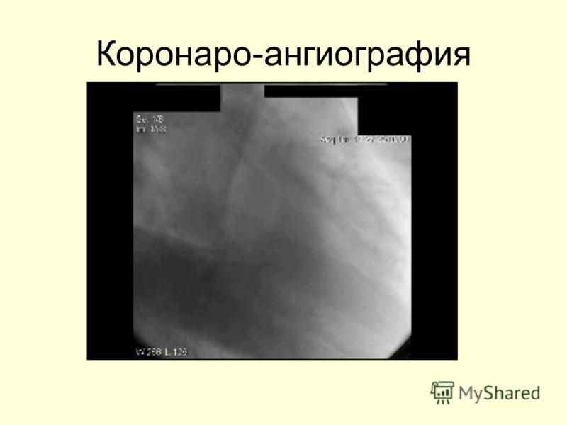 Коронаро-ангиография