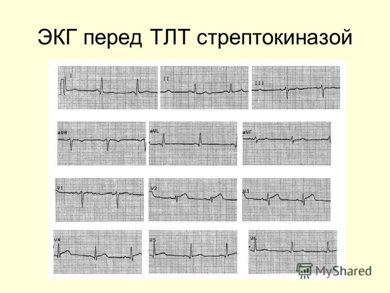 ЭКГ перед ТЛТ стрептокиназой