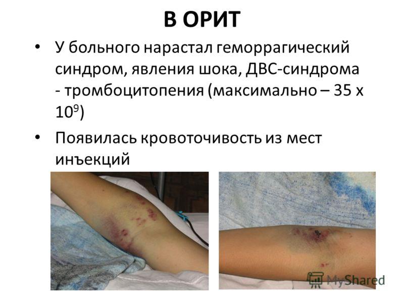 В ОРИТ У больного нарастал геморрагический синдром, явления шока, ДВС-синдрома - тромбоцитопения (максимально – 35 х 10 9 ) Появилась кровоточивость из мест инъекций
