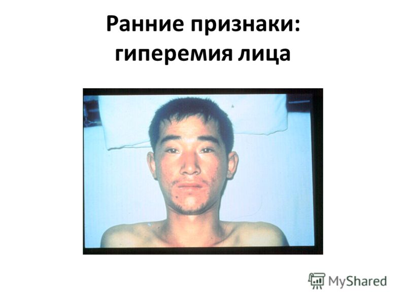 Ранние признаки: гиперемия лица