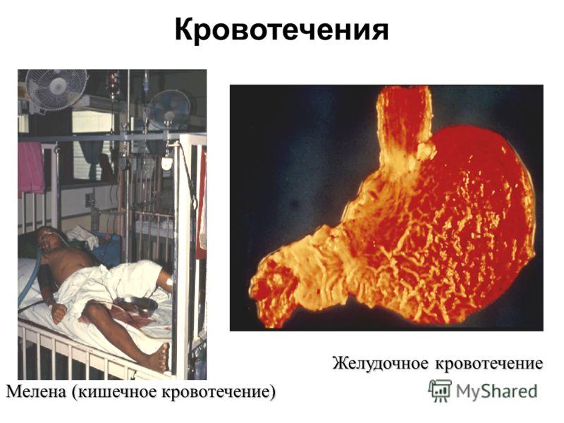 Мелена (кишечное кровотечение) Желудочное кровотечение Кровотечения
