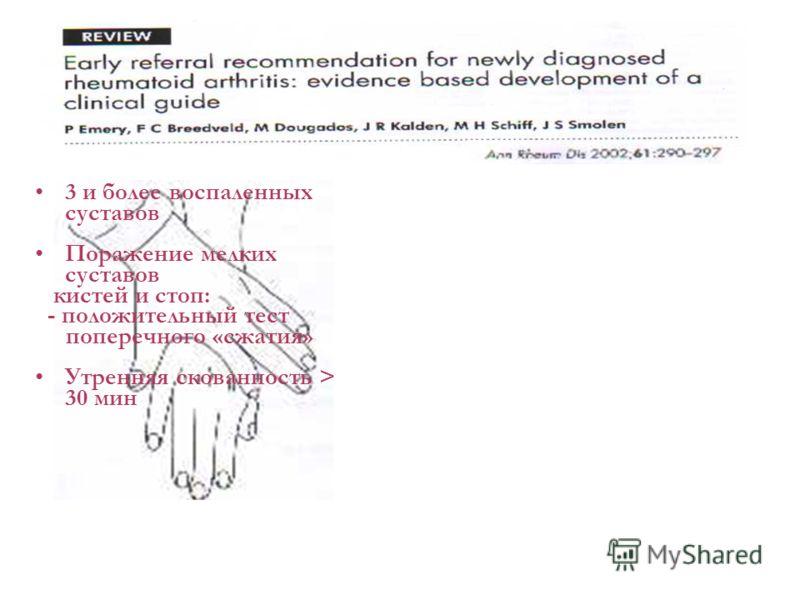 3 и более воспаленных суставов Поражение мелких суставов кистей и стоп: - положительный тест поперечного «сжатия» Утренняя скованность > 30 мин