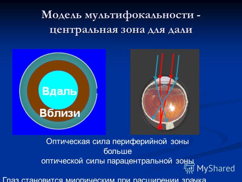 Модель мультифокальности - центральная зона для дали Оптическая сила периферийной зоны больше оптической силы парацентральной зоны Глаз становится миопическим при расширении зрачка